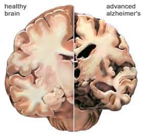 عوامل موثر در کاهش خطر آلزایمر