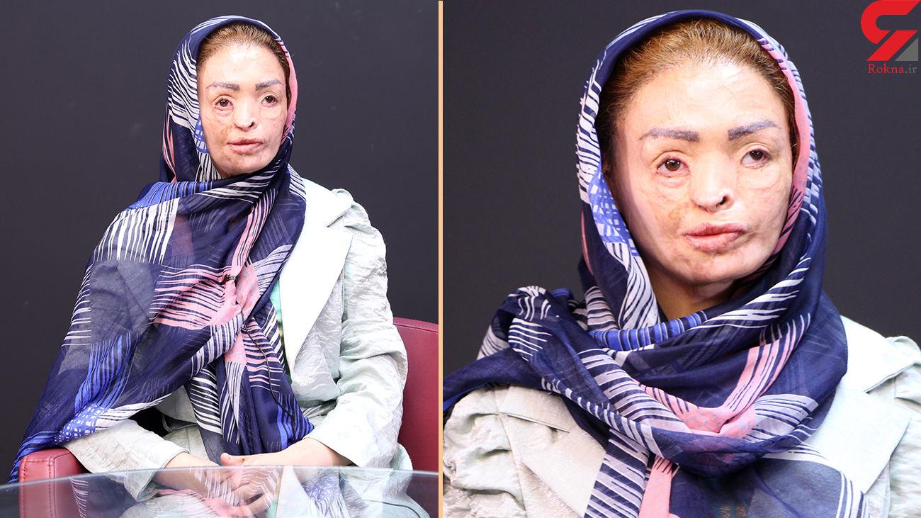 دختر تبریزی در جستجوی رویای زیبایی